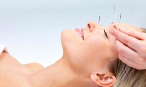 Beneficios de la acupuntura para la ansiedad
